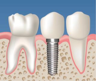 Impianto_dentale